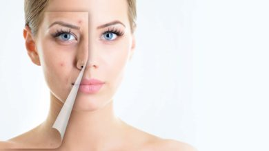 Photo of Think About Various Acne Treatment Methods