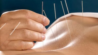 Photo of Advantages of Acupuncture Treatment