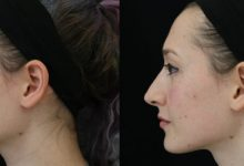Photo of Factors to Consider When You Want Nose Surgery